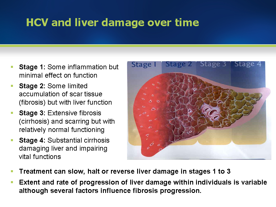 Module 3 Liver Damage And Course Of Hcv Infection